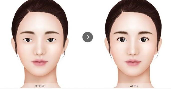trước và sau khi nhấn mí