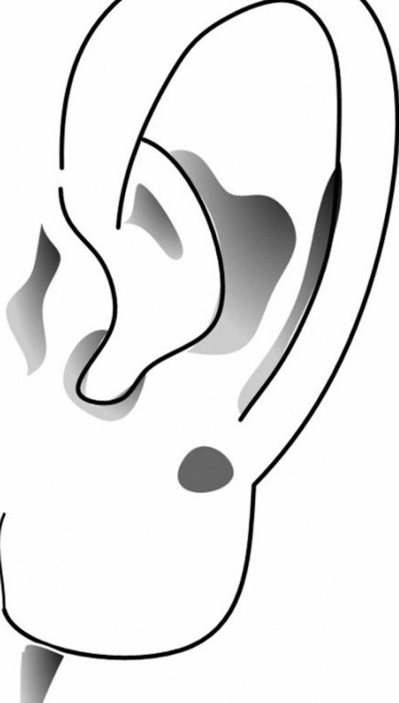 tiêm filler tai phật là gì