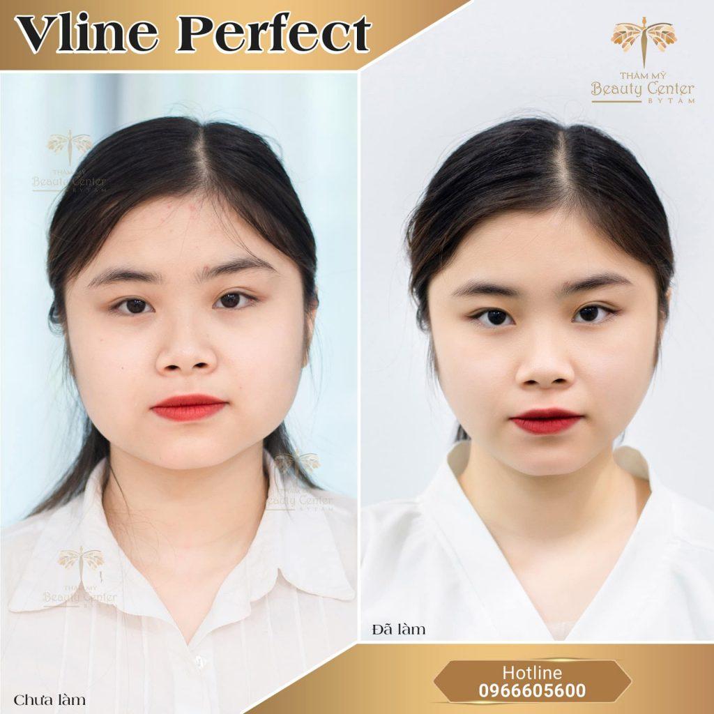 vline pefect khắc phục lệch mặt