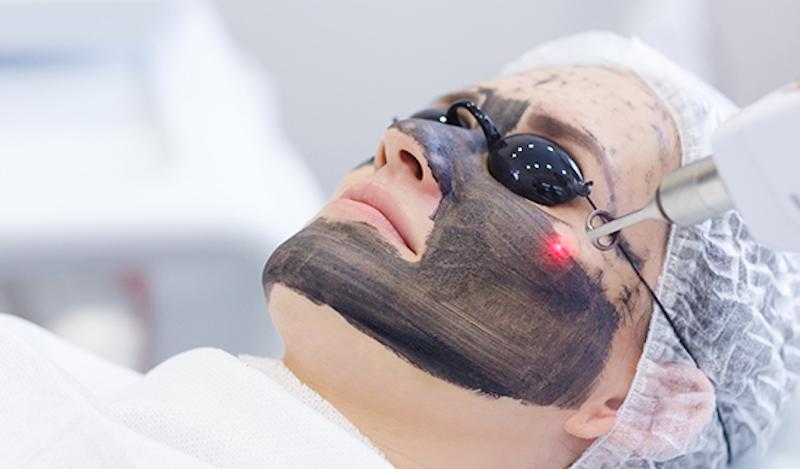 Laser Carbon Peel