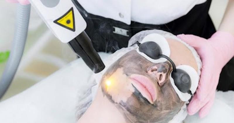 carbon laser
