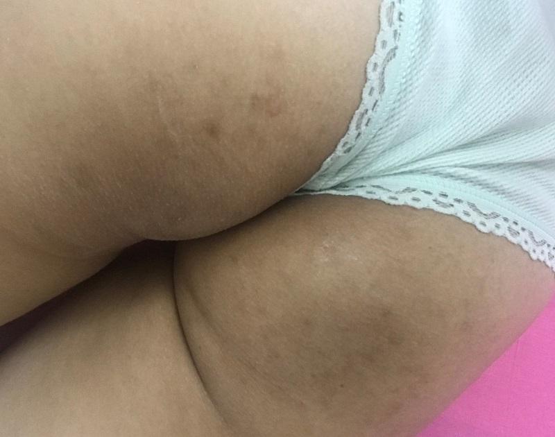 nguyên nhân gây thâm mông
