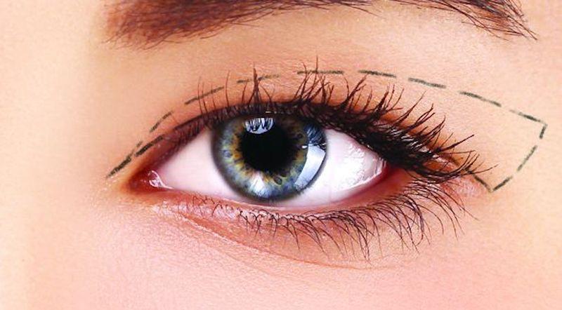 mắt lươn