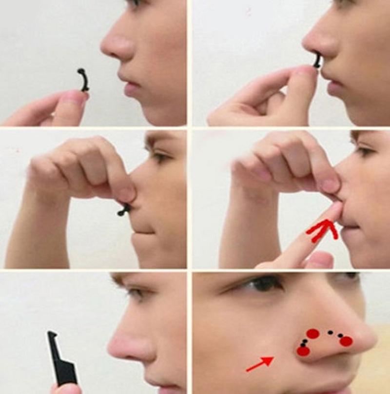 thu gọn cánh mũi băng chống mũi