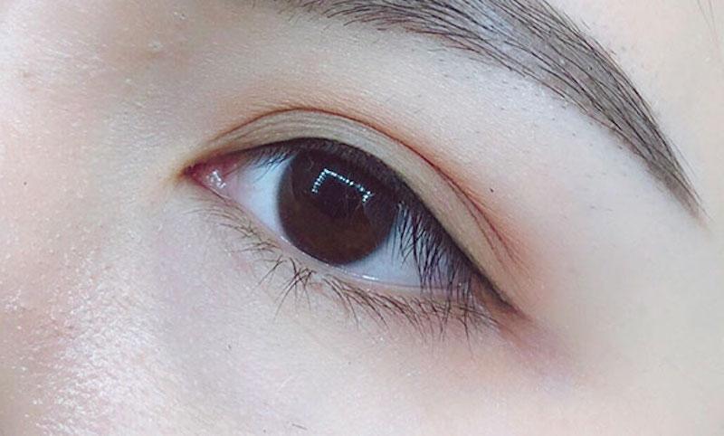 mắt đuôi cá
