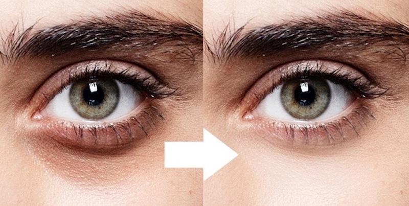 nguyên nhân gây quầng thâm mắt