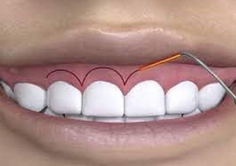phẫu thuật cắt nướu