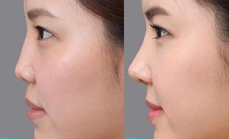 mũi tẹt