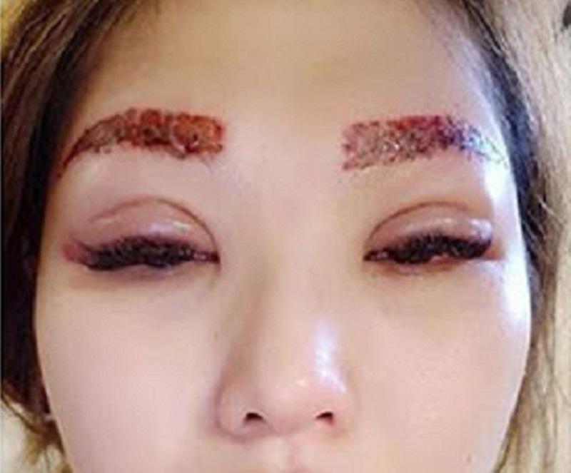 nhiễm trùng lông mày
