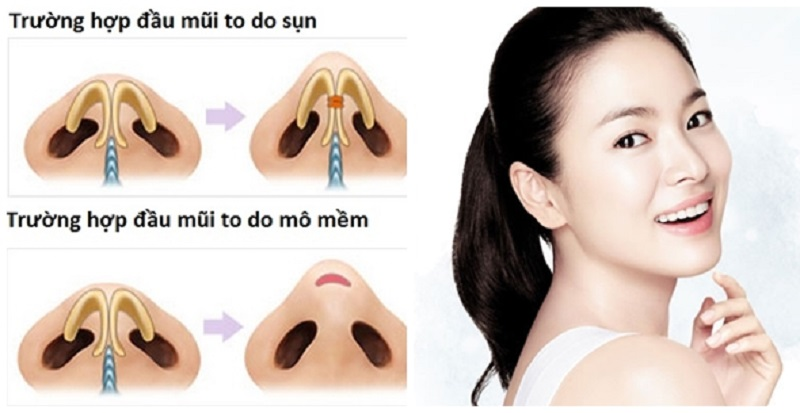 các thủ thuật thu nhỏ đầu mũi