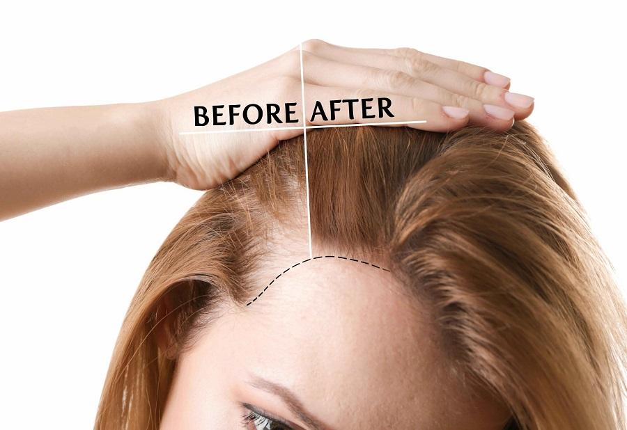 kết quả cấy tóc