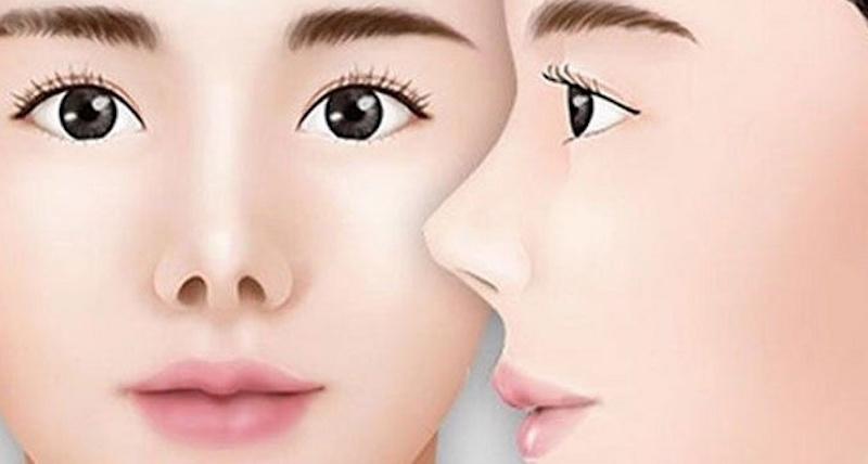 mũi hếch