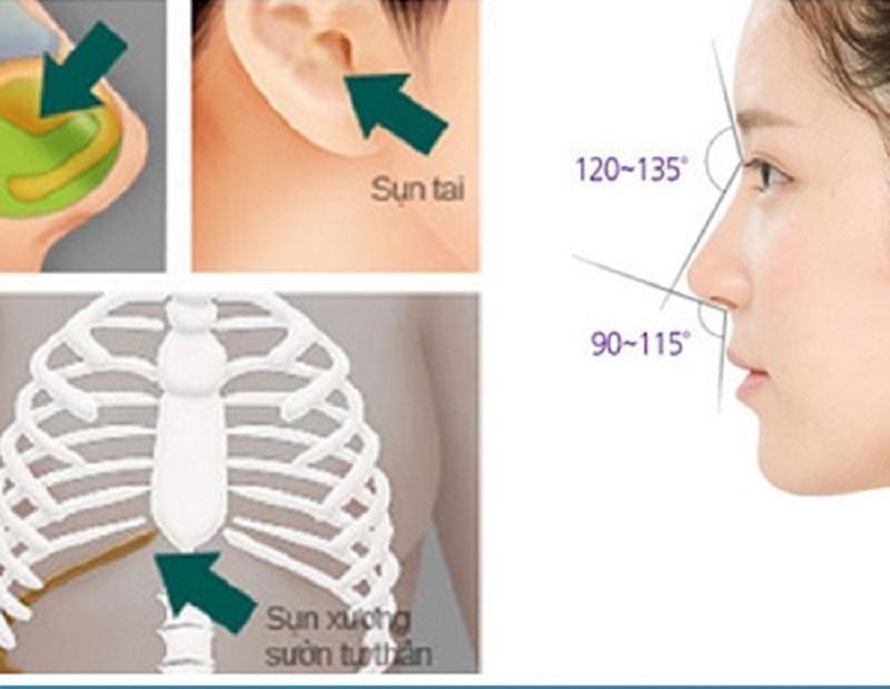 So sánh nâng mũi sụn sườn với nâng mũi sụn nhân tạo