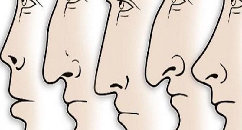 mũi to