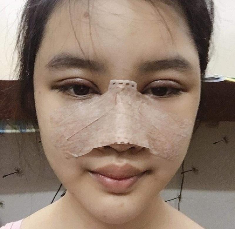 hiện tượng thường gặp sau nâng mũi