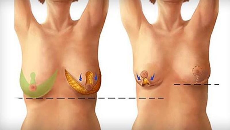 những biến chứng khi nâng ngực