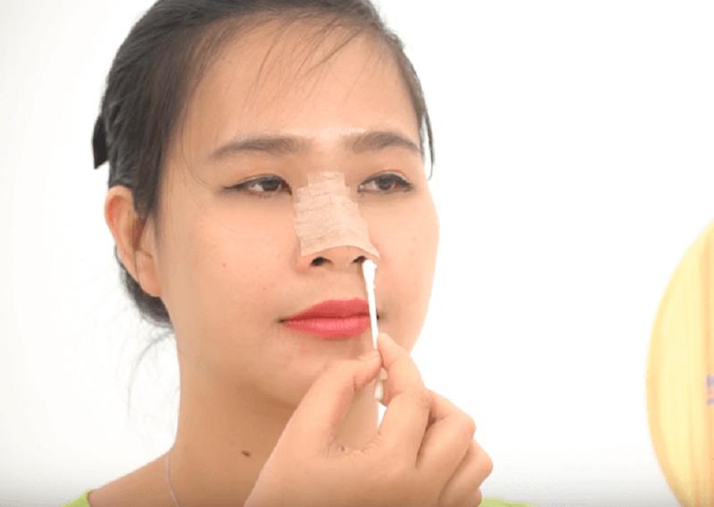 cách vệ sinh mũi sau nâng