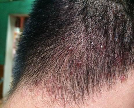 trị mụn da đầu