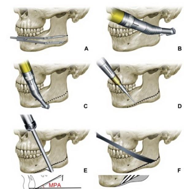 quy trình phẫu thuật gọt hàm