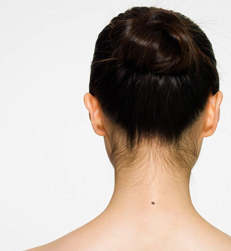 nốt ruồi chính giữa gáy