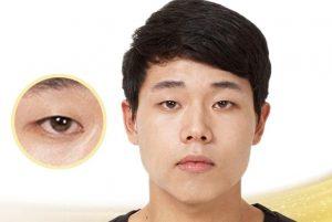 mắt một mí đẹp hay xấu